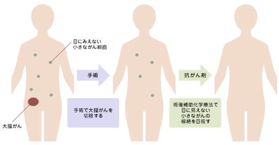 /data/fund/5257/小さながんも根絶.jpg